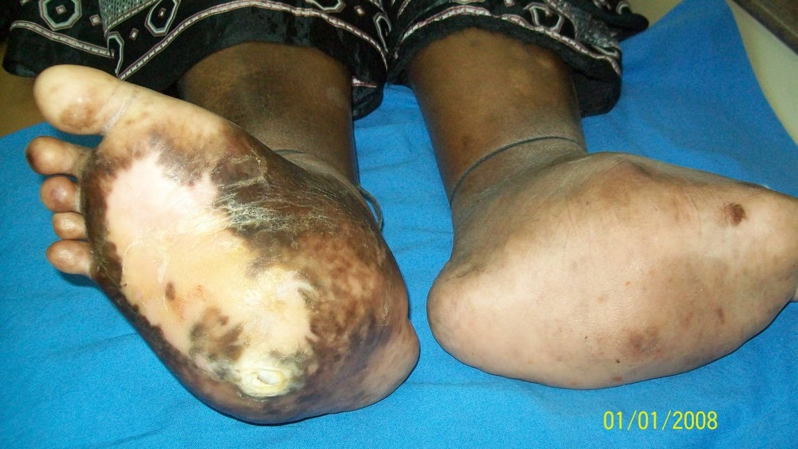Charcots Foot