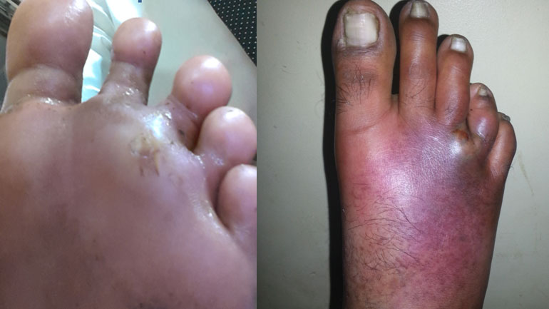 ABSCESS IN THE FOOT